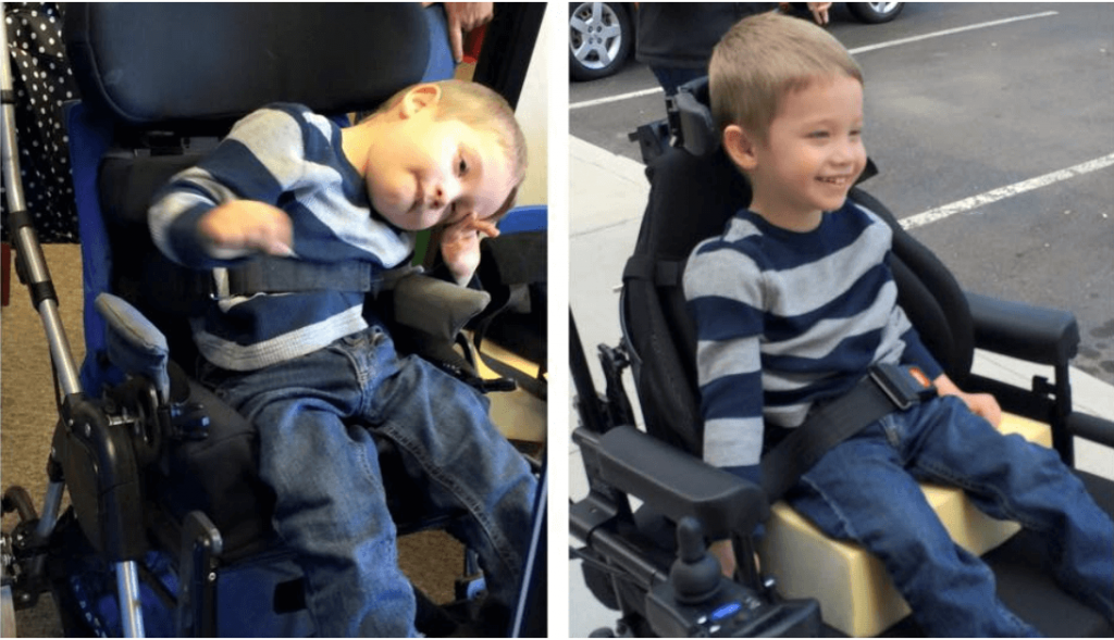 Two photographs of the same child. The one on the left shows the original seating system, leading to poor posture and difficulty using upper extremities. On the right is a revised seating system, showing the child much happier, functional, and engaged.