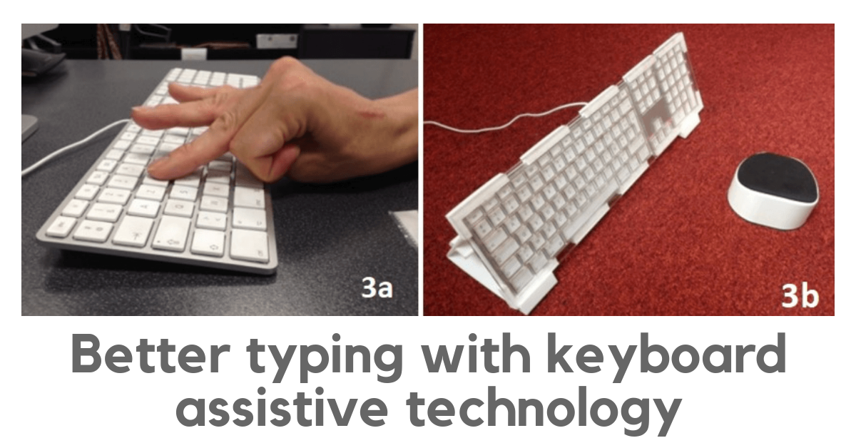Better typing with keyboard assistive technology. Photo on the left shows original keyboard, with user typing with left hand. Hand is partially curled up, with index and middle fingers extended. Photo on the right shows keyboard with assistive technology to enhance typing: keyguard, angled stand, and forearm rest.