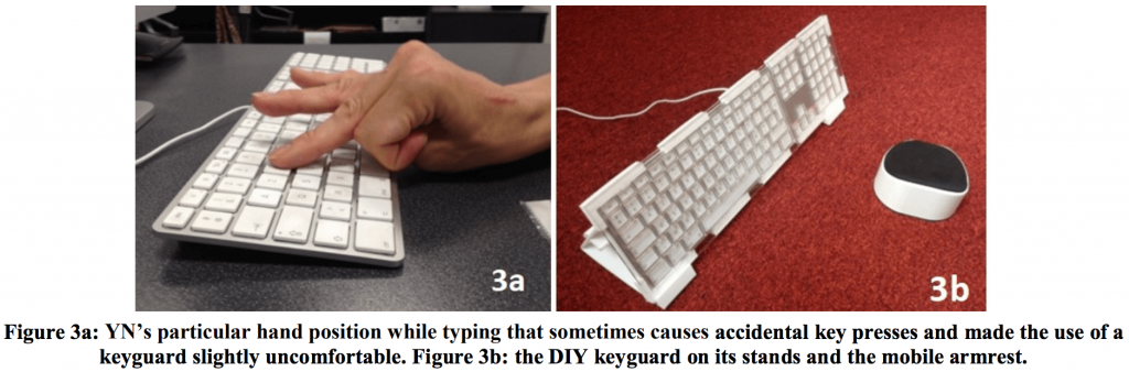 Photo on the left shows YN's hand position when typing, using left hand.  Hand is partially curled up, with index and middle fingers extended.  Photo on the right shows keyboard with keyguard, angled stand, and forearm rest.